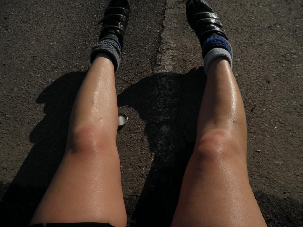 Anna's legs